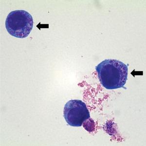 co-infection anaplasma